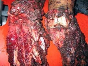 Blessure aux jambes suspectées d'être l'effet d'une bombe DIME, 2006, Gaza. (Photo: www.vtjp.org)