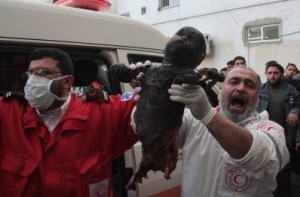 8 janvier 2009, Gaza: enfant brulé au phosphore blanc. (Photo: Fady Awan)