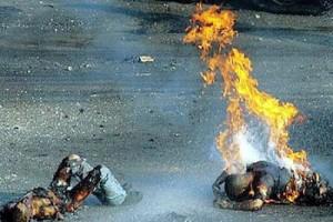 Victimes d'une bombe au phosphore blanc, Gaza. (Photo: G. Esteban)