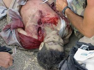 Omar Khadr, blessé sur le champs de bataille, 27 juillet 2002. (Photo: domaine public)